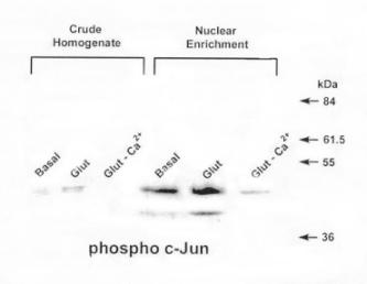 Fig 2 Nuclear Enrichment