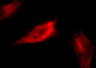 Immunocytochemistry/ Immunofluorescence - Anti-Caveolin-1 antibody (ab2910)