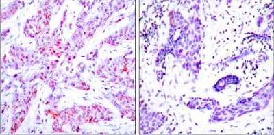 Immunohistochemistry (Formalin/PFA-fixed paraffin-embedded sections) - Anti-ATF-4 antibody (ab31390)