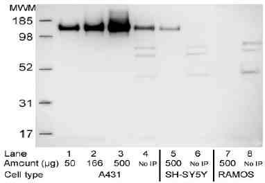 Immunoprecipitation - Anti-EGFR Affibody® Molecule Agarose Immobilized (ab36039)