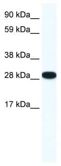 Western blot - Anti-TIS11B antibody (ab42473)