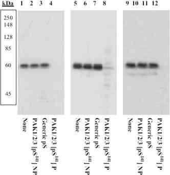 Western blot - Anti-PAK1 + PAK2 + PAK3 (phospho S141) antibody (ab5247)