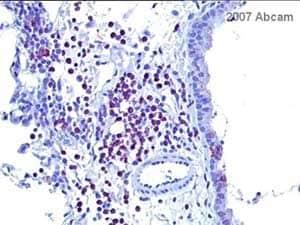 Immunohistochemistry (Formalin/PFA-fixed paraffin-embedded sections) - Rabbit IgG antibody - H&L (ab6720)