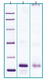 SDS-PAGE - GPHB5 protein (His tag) (ab63273)