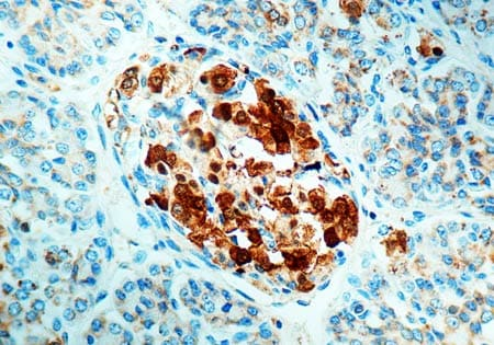Immunohistochemistry (Formalin/PFA-fixed paraffin-embedded sections) - Anti-NSE antibody - Neuronal Marker (ab834)