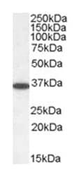 Western blot - Anti-PP2A alpha + beta antibody (ab1309)