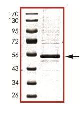 Western blot - PKA regulatory subunit I beta protein (ab102106)