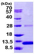 SDS-PAGE - S100 alpha 2 protein (ab104821)