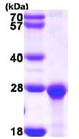 SDS-PAGE - PCNP protein (ab113147)