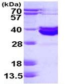 SDS-PAGE - Blood Group Antigen Precursor protein (ab113153)