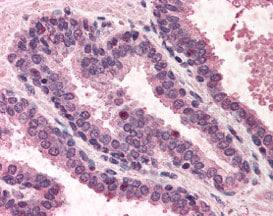 Immunohistochemistry (Formalin/PFA-fixed paraffin-embedded sections) - Anti-DNA Polymerase Kappa/POLK antibody (ab115625)