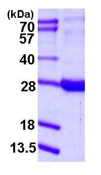 SDS-PAGE - RBP1 protein (ab115723)