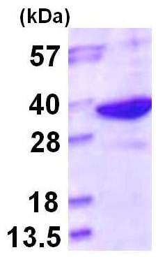 SDS-PAGE - LHPP protein (ab116175)