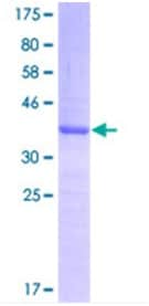 SDS-PAGE - PLAG1 protein (ab116786)