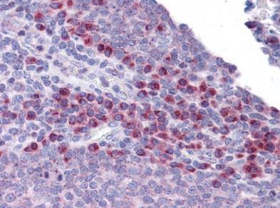 Immunohistochemistry (Formalin/PFA-fixed paraffin-embedded sections) - Anti-SCRN3 antibody (ab117709)