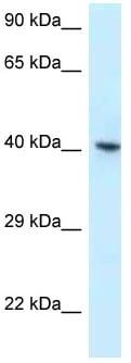 Western blot - Anti-hnRNP G antibody (ab118688)