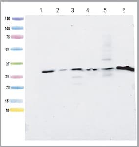 Western blot - Anti-ATPG antibody [2A1AA11] (ab119686)
