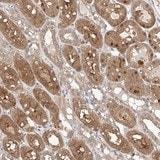 Immunohistochemistry (Formalin/PFA-fixed paraffin-embedded sections) - Anti-ZFHX2 antibody (ab121112)