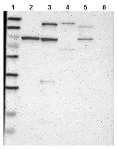Western blot - Anti-Consortin antibody (ab121256)