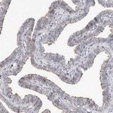 Immunohistochemistry (Formalin/PFA-fixed paraffin-embedded sections) - Anti-KIF26B  antibody (ab121952)