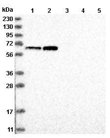 Western blot - Anti-TTC24  antibody (ab122087)