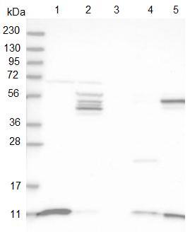 Western blot - Anti-SH3BGRL3 antibody (ab122138)