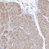 Immunohistochemistry (Formalin/PFA-fixed paraffin-embedded sections) - Anti-FAM184A antibody (ab122215)