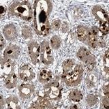 Immunohistochemistry (Formalin/PFA-fixed paraffin-embedded sections) - Anti-SBEM antibody (ab122530)