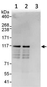 Immunoprecipitation - Anti-SH3PXD2B antibody (ab123503)
