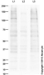 Western blot - Anti-Ret (phospho Y1062) antibody (ab123544)
