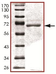SDS-PAGE - PDK3 protein (Active) (ab125606)