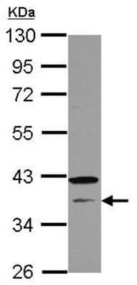 Western blot - Anti-CNTD antibody (ab126998)