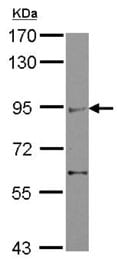 Western blot - Anti-ZMIZ2 antibody (ab127046)