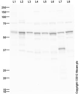 Western blot - Anti-ATP5A antibody (ab151229)