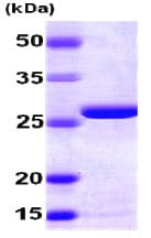 SDS-PAGE - AK2 protein (His tag) (ab78832)