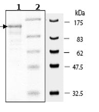SDS-PAGE - DPP8 protein (Active) (ab79662)