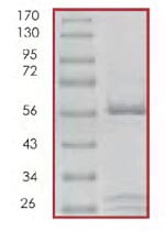SDS-PAGE - CDK4 + CCND3 protein (Active) (ab85646)