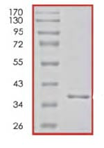SDS-PAGE - PCNA protein (His tag) (ab85651)