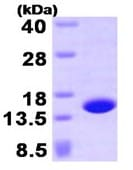 SDS-PAGE - Profilin 4 protein (His tag) (ab93932)