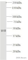 Western blot - Anti-Rad51 antibody [14B4] (ab213)