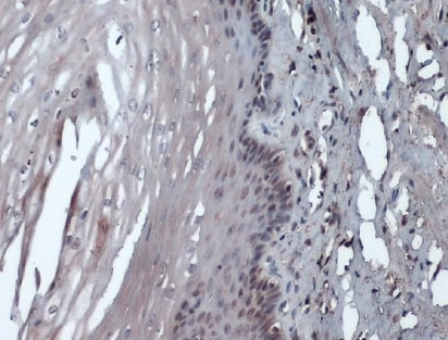 Immunohistochemistry (Formalin/PFA-fixed paraffin-embedded sections) - Anti-Rad51 antibody [14B4] (ab213)
