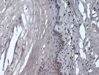 Immunohistochemistry (Formalin/PFA-fixed paraffin-embedded sections) - Anti-Rad51 antibody [14B4] (ab213)