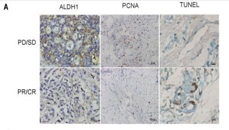 Immunohistochemistry (Formalin/PFA-fixed paraffin-embedded sections) - Anti-PCNA antibody [PC10] (ab29)
