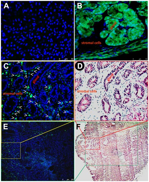 Immunohistochemistry (Formalin/PFA-fixed paraffin-embedded sections) - Anti-GFP antibody (ab290)