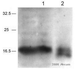 Immunoprecipitation - Anti-Survivin antibody (ab469)