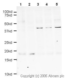 Western blot - Anti-Survivin antibody (ab469)