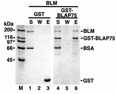 Immunoprecipitation - Anti-Blooms Syndrome Protein Blm antibody (ab476)