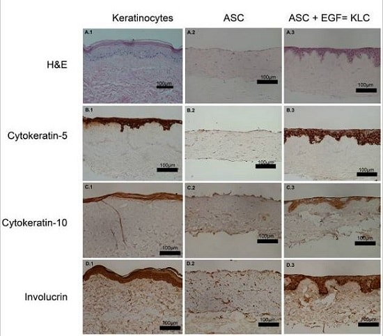 Immunohistochemistry (Formalin/PFA-fixed paraffin-embedded sections) - Anti-Involucrin antibody [SY5] (ab68)