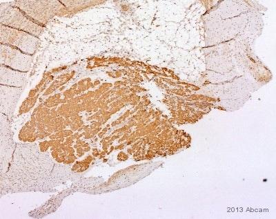 Immunohistochemistry (Formalin/PFA-fixed paraffin-embedded sections) - Anti-Myosin light chain 3 antibody [MLM527] (ab680)