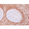 Immunohistochemistry (Formalin/PFA-fixed paraffin-embedded sections) - Anti-Bcl-2 antibody [100/D5] (ab692)
